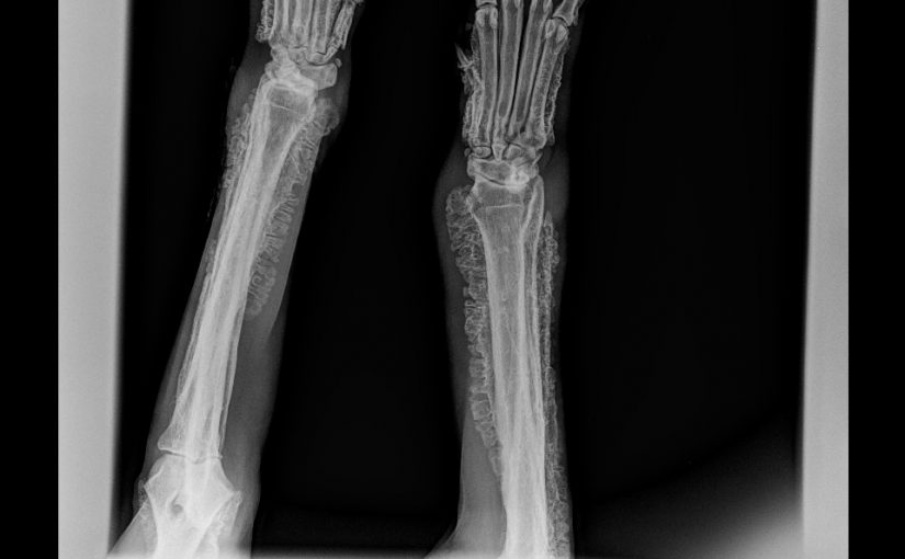 Ostéopathie hypertrophique ou syndrome de Cadiot-Ball